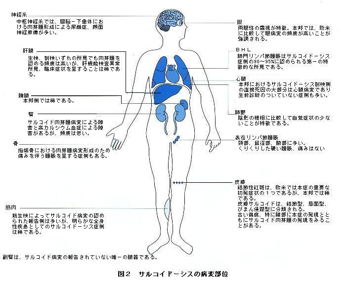サルコイドーシス長井先生論文