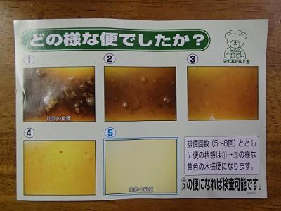 バリウム 検査 下剤 バリウム検査後、下剤を飲んでからの経過と対策